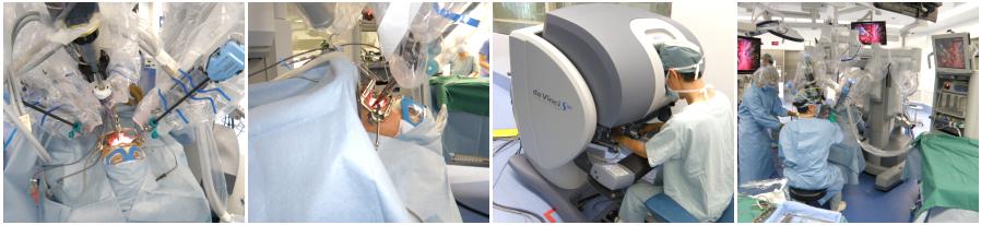 咽喉頭癌のロボット手術