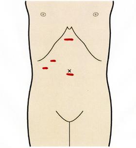 痛い 下 肋骨 の 押す と