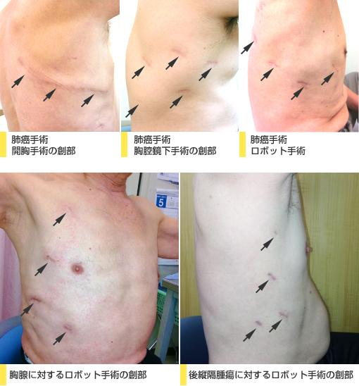 開胸手術とロボット手術の手術後の傷の大きさを比較する写真
