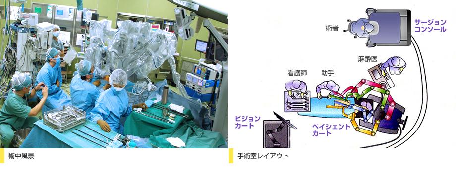 術中風景 手術室レイアウト