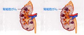 アイコン_腎盂尿管癌